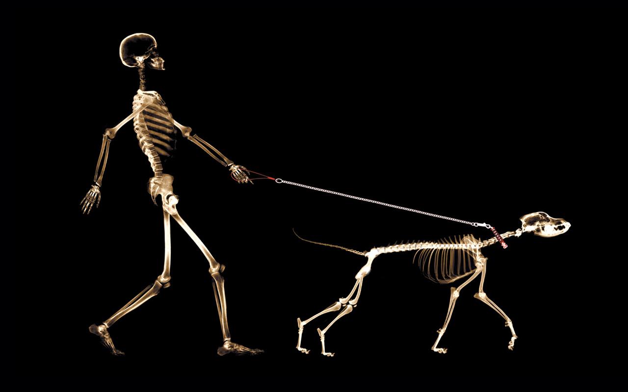 Celiachia e ossa fragili