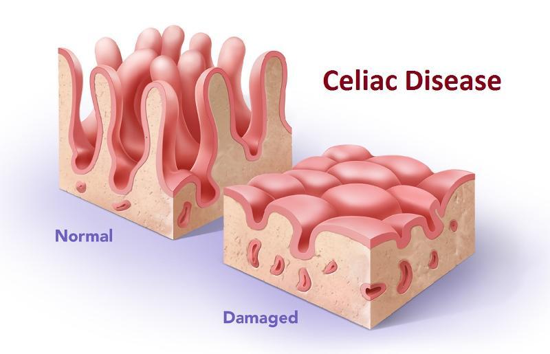 Celiachia e ipersensibilità al glutine: 10 risposte alle vostre domande