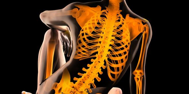 Celiachia, controlli di routine della densità minerale ossea per tutti (soprattutto nel sesso maschile)