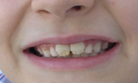 Celiachia e salute orale: gli effetti sullo smalto dentale