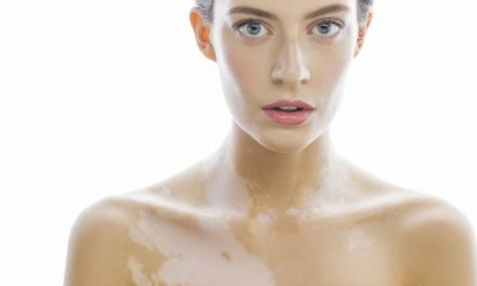Vitiligine: cause, sintomi e cure