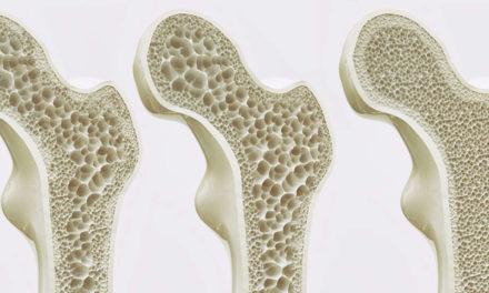 Con la celiachia rischio più alto di fratture osteoporotiche maggiori